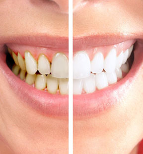 teeth-whitening-thm