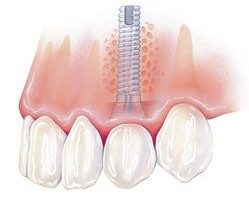 What to Consider when Getting a Dental Implant